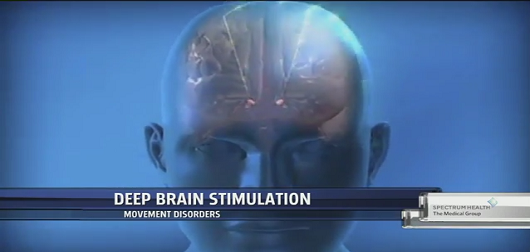 Deep Brain Stimulation to Regulate Movement Disorders