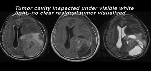Fluorescent Guided Glioblastoma Resection