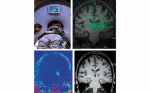 The Use of Magnetic Resonance Imaging-guided Focused Ultrasound in Movement Disorders—A Review