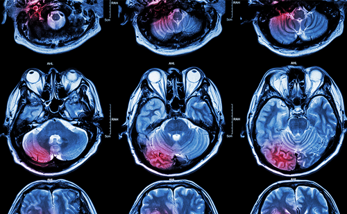 Latest Developments in Preclinical Alzheimer's Disease