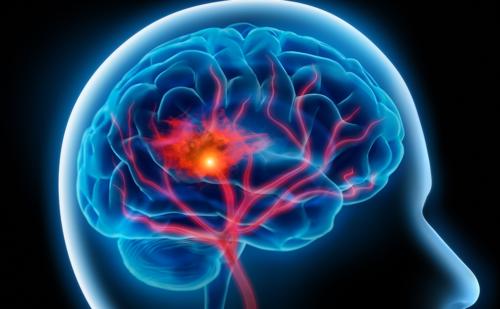 Molecular Pathogenesis of Alzheimer's Disease